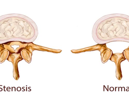 Stenoza spinalnog kanala