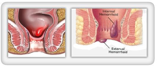 Unutrašnji i vanjski hemoroidi